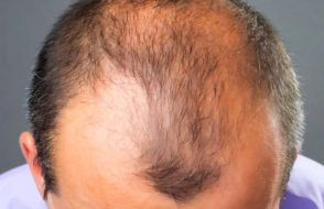 Home Remedies for Hair Loss and Feature Baldness