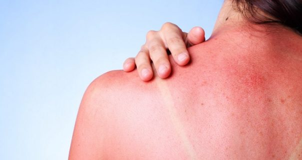 Natural Treatment to Magically Get rid of Sunburn