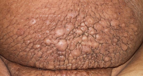 Lymphatic Filariasis Symptoms, Treatment & Diagnosis