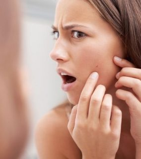 Tips for Combating Acne and keeping Blemishes in Bay