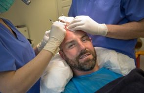 What makes Hair Transplant Natural?