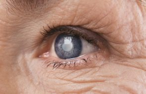 Types of Glaucoma and How to Deal with them?